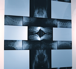 AnatomicalTransfigurations